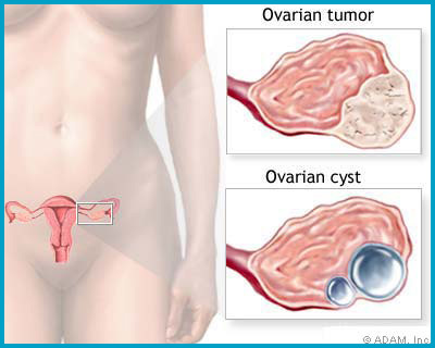 The ovaries are small organs located within the pelvis and are connected to